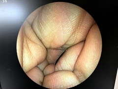 Video Transnasal Gastroscopephoto8