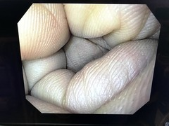 Video Gastroscopephoto7